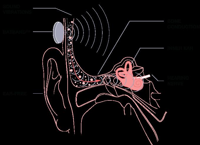 kickstarter batband bone conduction bluetooth headphone
